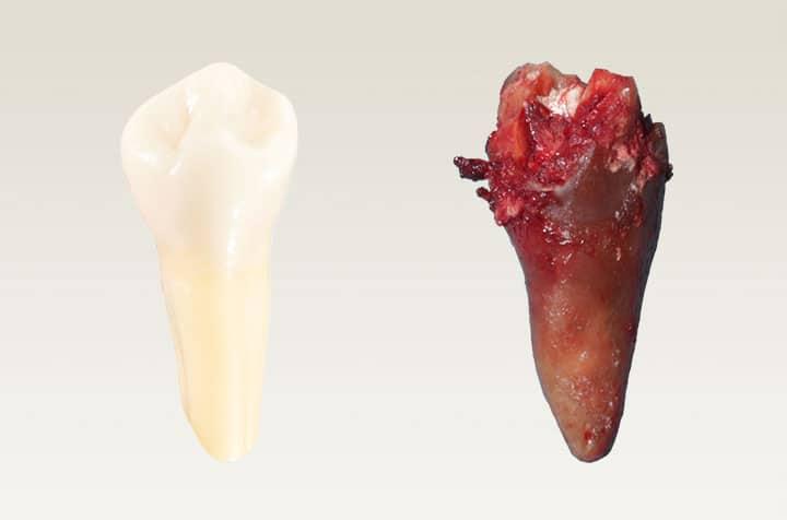 Martwe zęby - Zęby kanałowe
